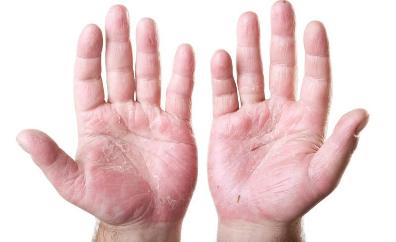 Дисгидроз на кистях рук