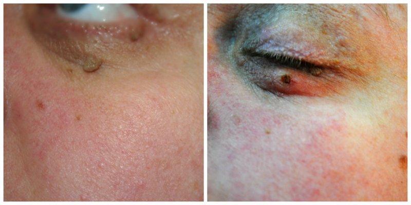 Удалить папиллому с нижнего века глаза - Папиллома на веке правильное лечение и последующий уход + фото