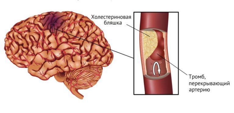 Кровоизлияние в мозг у беременных 77
