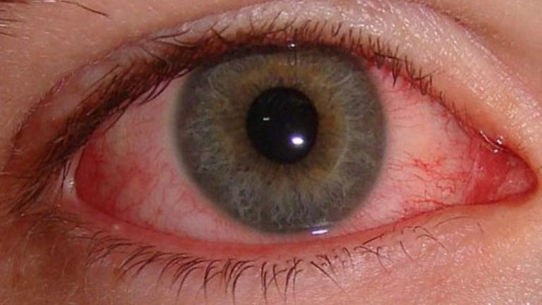 Чем вылечить глаза от сварки в домашних условиях 51