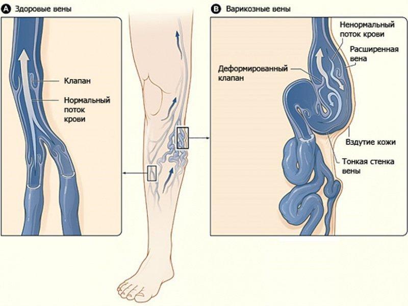 Вены на ногах в домашних условиях лечение