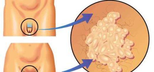 Онкогенные типы ВПЧ высокого риска