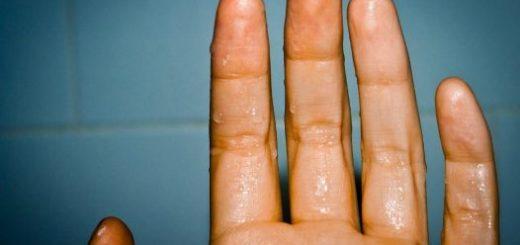 Почему потеют руки и ладони