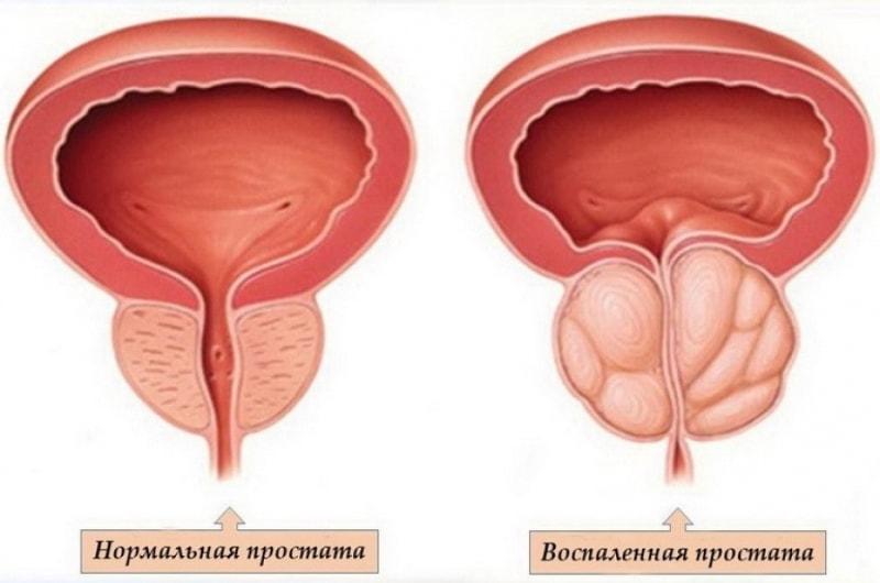 Простатит и нормальная простата