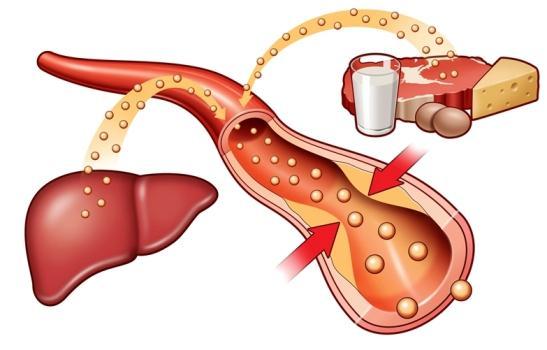 Повышенный холестерин в крови: причины, диета, что делать и как лечить