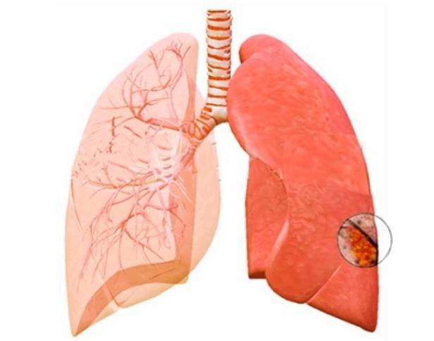 Абсцесс лёгкого