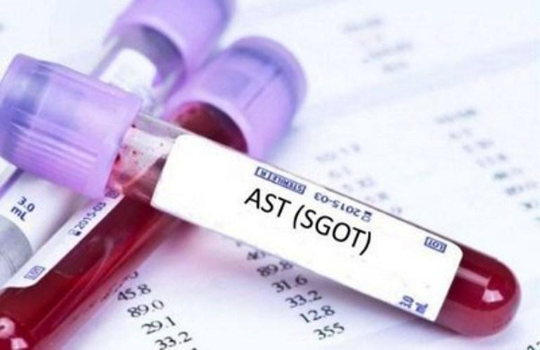 Анализ крови на АЛТ и АСТ