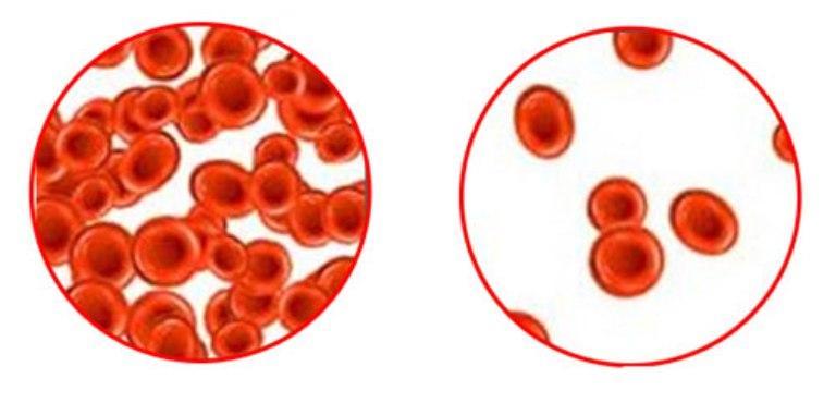 Анемия и нормальная кровь