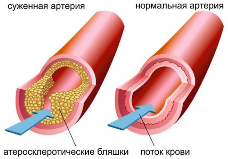 Суженная и нормальная артерия