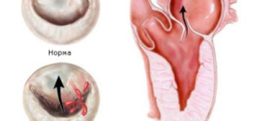Пролапс митрального клапана – что это и чем опасен