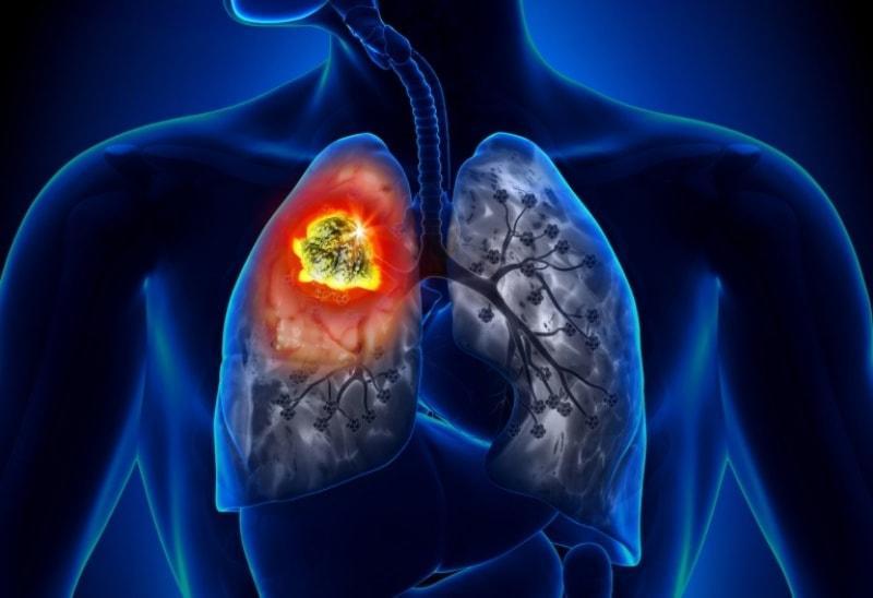 Болезнь лёгких