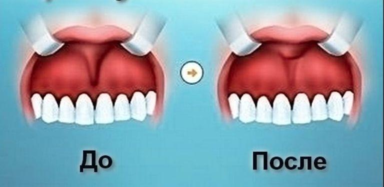 До и после проведения френулопластики