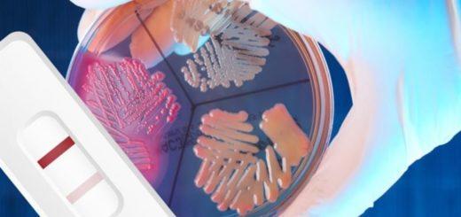 Escherichia coli (e. coli) – что это такое?