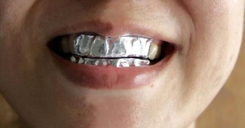 Фольга на зубах для отбеливания