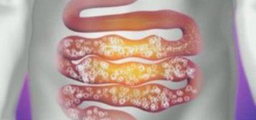 Причины и лечение вздутия живота и газообразования