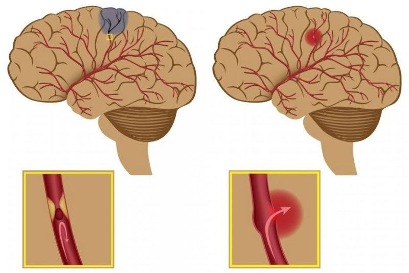 Геморрагическая форма инсульта