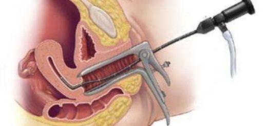 Что такое гистероскопия в гинекологии?