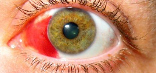 Что такое глазное давление?
