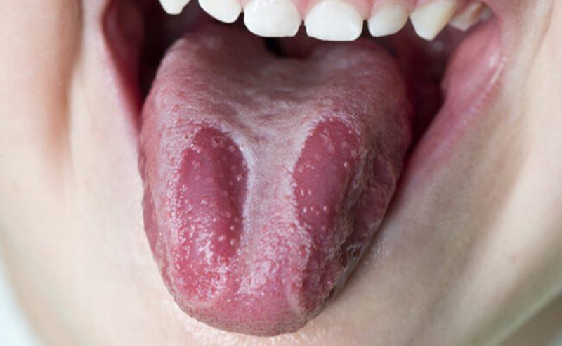 Глоссит языка