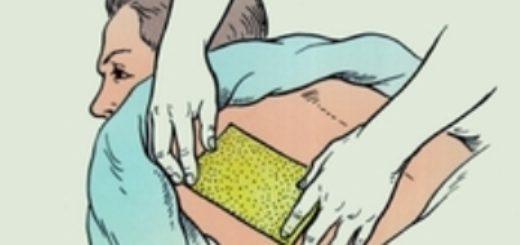 Как ставить горчичники при кашле
