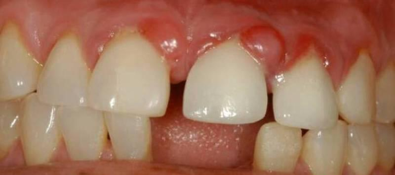 Почему выпадают зубы без крови? Почему происходит выпадение зубов, и что с этим делать.