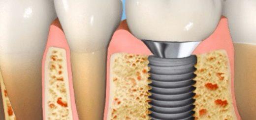 Как ставят зубные имплантанты?