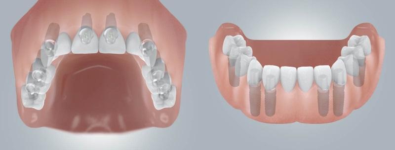 Импланты в верхней и нижней части челюсти