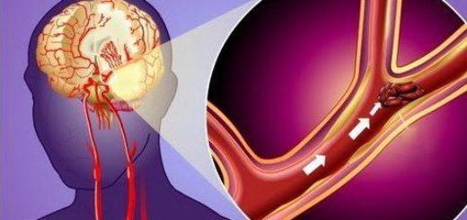Что такое микроинсульт – первые признаки и лечение