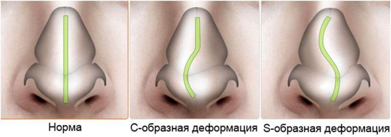 деформация носовой перегородки