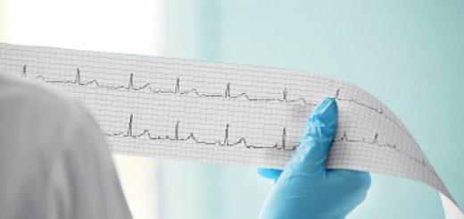 ЭКГ сердца (электрокардиография)
