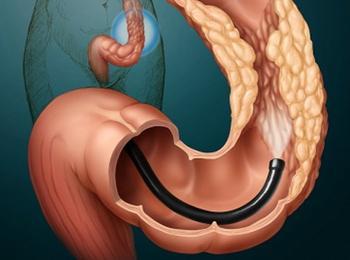 Колоноскопия что можно есть перед процедурой
