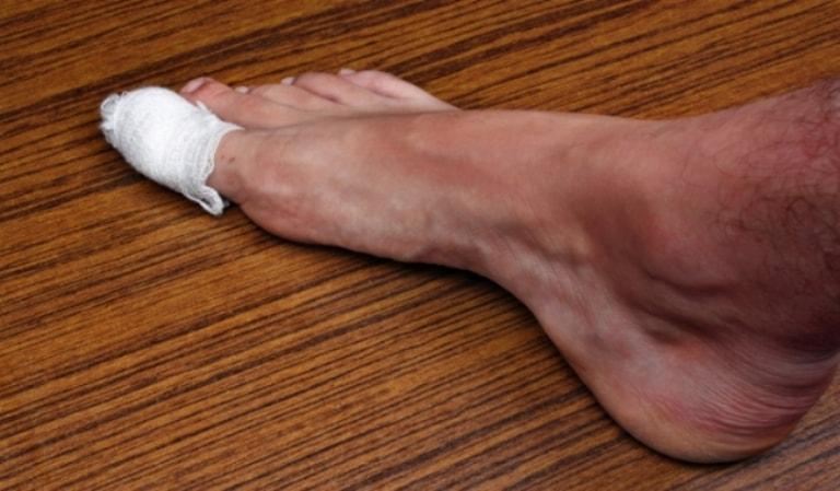к чему снится травма ноги аренде