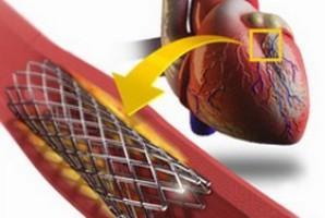 Коронарное стентирование сосудов сердца