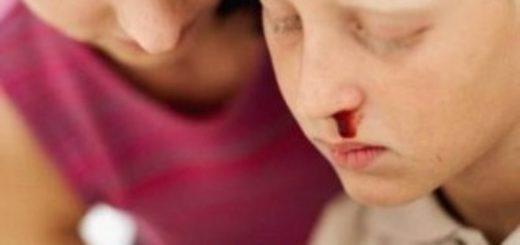 Почему у ребенка идет кровь из носа – что делать?