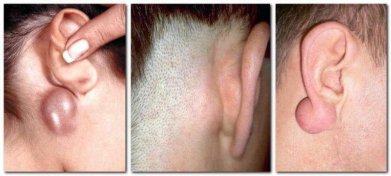 Лимфаденит за ушами
