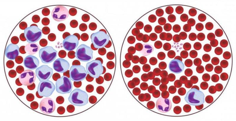 Лимфоцитопения и нормальная кровь