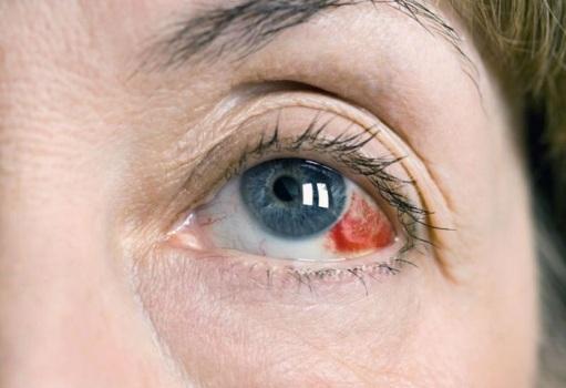 От чего лопаются сосуды в глазах: причины и профилактика