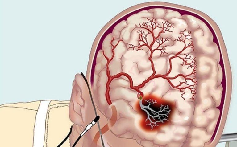Болезнь сосудов головного мозга как называется