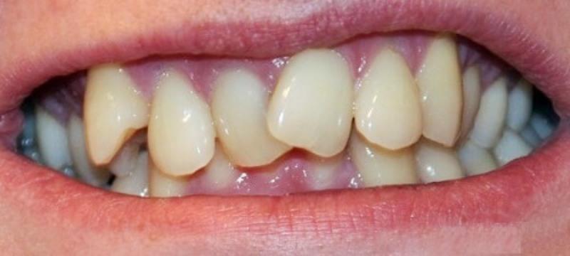 Неправильный рост зуба