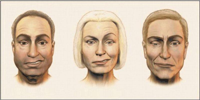 Воспаление лицевого нерва от чего бывает