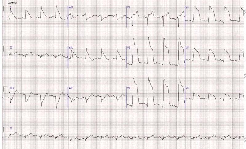 ЭКГ сердца: расшифровка, цена и показания