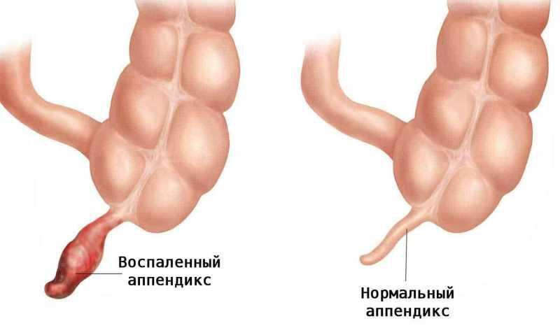 Нормальный и воспаленный аппендикс