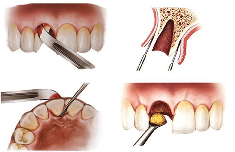 Обработка лунки зуба