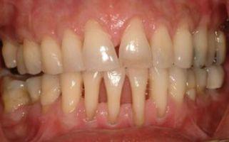Оголение шейки зуба при пародонтите