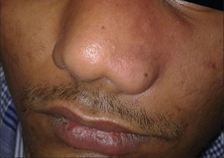 Опухлость носа