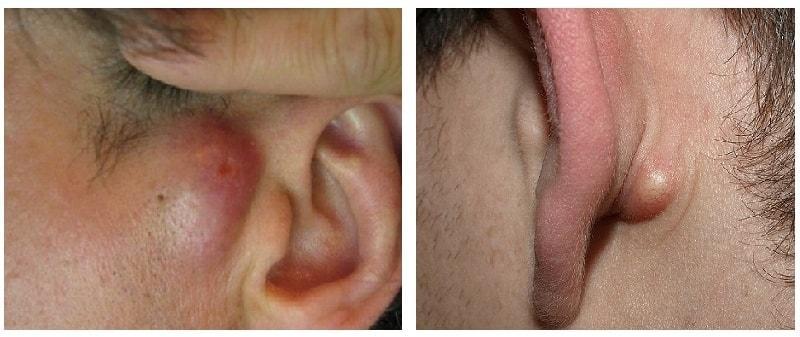 Опухоли уха