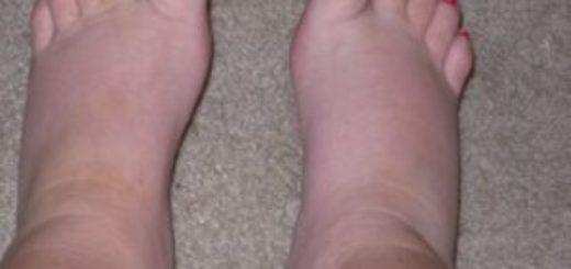 Почему опухают ноги – что делать?