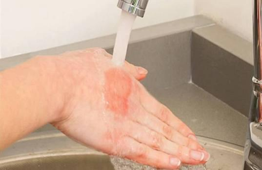 Чем лечить ожог в домашних условиях