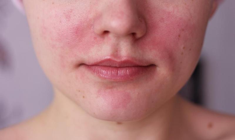 Покраснение на лице