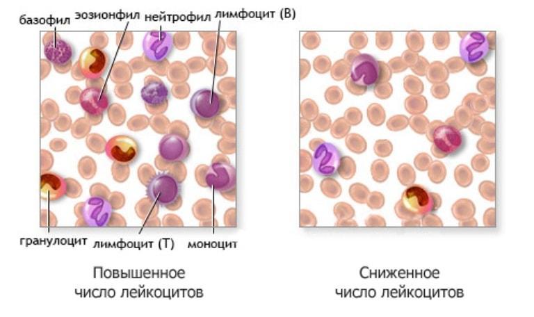 Пониженное и повышенное число лейкоцитов